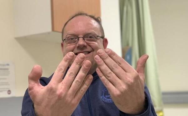 Pri práci si odsekol prst. Na ruku mu prišili palec z nohy