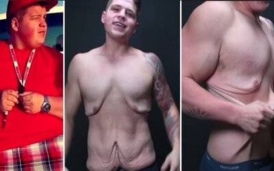 Príbeh chlapca s nadváhou a video ukazujúce prebytočnú kožu na jeho tele, ktoré obletelo svet