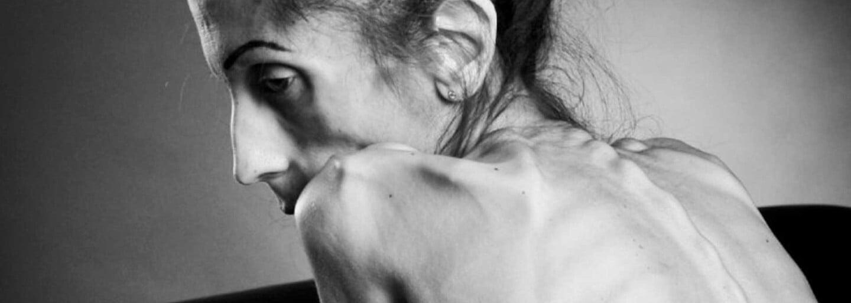 Profily blogeriek s alarmujúcou váhou, po ktorých zhliadnutí pochopíš, prečo Instagram spôsobuje poruchy príjmu potravy
