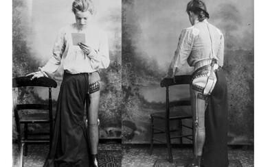 Protézy z prelomu 19. a 20. storočia dokázali predbehnúť dobu. Anglický obuvník uľahčoval hendikepovaným ľuďom život