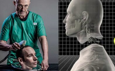 Prvá transplantácia hlavy bude desivým zážitkom. Lekári varujú pred bolesťou, ktorú ešte nikdy nikto nezažil