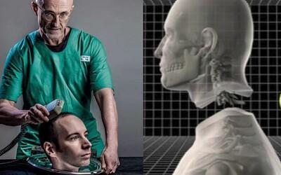 První transplantace hlavy bude děsivým zážitkem. Lékaři varují před bolestí, jakou ještě nikdy nikdo nezažil