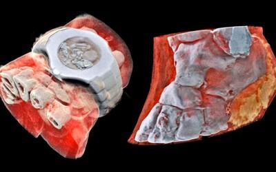 Prvý farebný 3D röntgen vyzerá trochu strašidelne. Vie v ľudskom tele zobraziť aj svaly či tkanivá