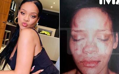 Rihanna darovala miliony dolarů obětem domácího násilí, zažila ho na vlastní kůži