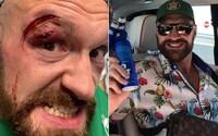 Rozseknuté obočie Furyho potrápilo: Dostal som 47 stehov, šiel som do kasína a dal som si pár pív, na Wildera som pripravený