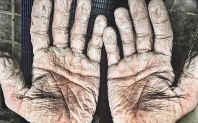Ruky olympijského veslára po 1000 kilometroch pripomínajú scény z hororového filmu. Fotografia Alexa Gregoryho rýchlo obletela internet