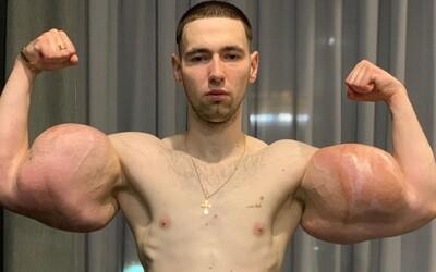 Ruský Pepek námořník, který si napíchal bicepsy olejem, musel podstoupit operaci. Vyndávali mu odumřelé svaly