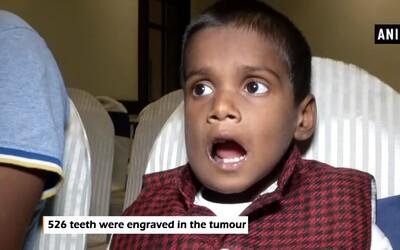Sedmiletému chlapci vytrhli 526 zubů, ukrývaly se v dolní čelisti