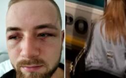 Slováka Jakuba vraj policajná hliadka dobila tak, že mu zlomili časť lebky. V cele mu kľačali na krku a bál sa, že zomrie