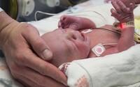 Slovenka s koronavírusom porodila zdravého chlapca. Rodička mala nasadené rúško, zdravotníci ochranné obleky