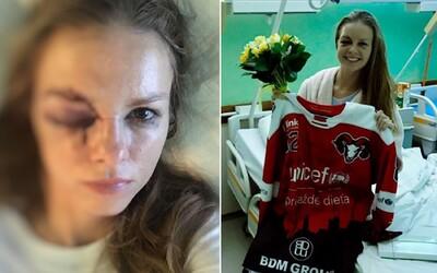 Slovenskou reportérku zasáhl do obličeje puk, hrozilo, že nebude vidět. Z nemocnice hlásí, že je v pořádku