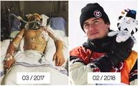 Snowboardista Mark McMorris: Pred 11 mesiacmi bojoval o život a teraz sa teší z bronzovej medaily na ZOH v Pjongčangu