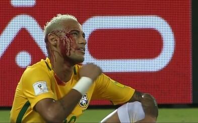 Stal se historicky čtvrtým nejlepším brazilským střelcem, ale skončil i celý zakrvácený. Neymar tentokrát nic nepředstíral, ale žlutá karta pro soupeře i tak nepřišla