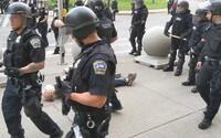 Starší pán, kterého američtí policisté shodili na zem, od incidentu nemůže chodit. Při pádu si poškodil mozek
