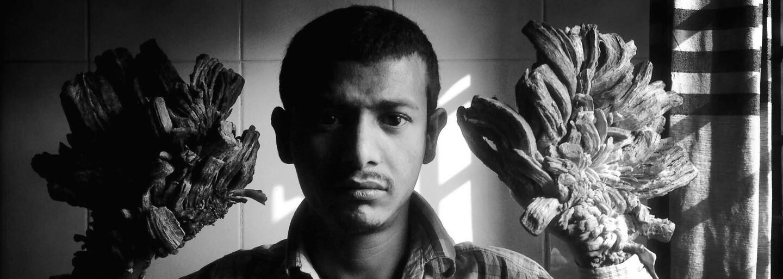 """""""Stromového muža"""" z Bangladéša po 16 operáciách zbavili utrpenia. Vzácna porucha kože mu poriadne znepríjemňovala život"""