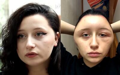 Študentke napuchla hlava do takmer dvojnásobných rozmerov po použití farby na vlasy