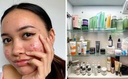 Sú len tri produkty, ktoré musí používať naozaj každý, tvrdia odborníčky na kožu. Ktoré to sú?