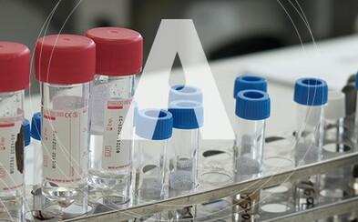 Súkromné slovenské laboratórium Alpha medical má skoro 2000 profesionálnych testov, ďalšie priebežne dopĺňa. Ponúka ich štátu