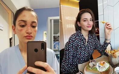 Talianska sestrička má opuchnutú tvár z prepracovania, no neprestáva bojovať. Bojím sa, ale svoju prácu milujem, vraví