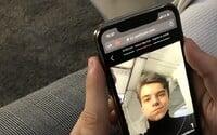 Táto appka ti poradí, čo s tvojim akné. Stačia ti na to iba tri selfie
