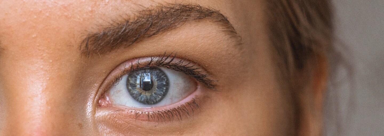 Trápia ťa nemiznúce vyrážky na určitej časti tváre? Je možné, že tvoje telo ti niečo naznačuje