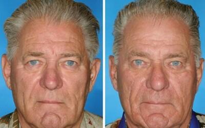 Tváre jednovaječných dvojčiat odhalili vplyv fajčenia na starnutie