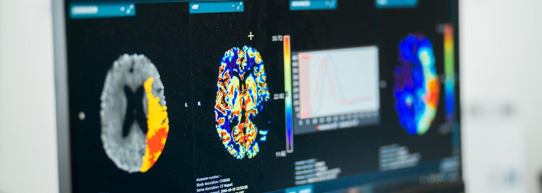 Umelá inteligencia nemusí byť len hrozbou. V Galante zachraňuje ľudské životy