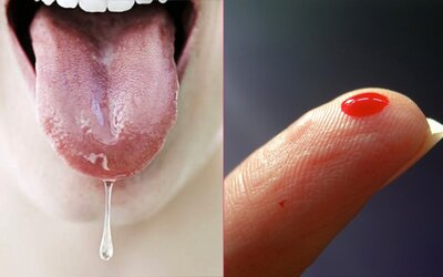 Ušný maz, spermie či sliny: V našom tele môžeme mať až 30 rôznych tekutín