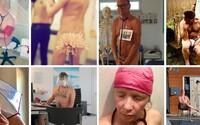 V boji s Covid-19 sme nahí. Lekári začali zhadzovať oblečenie, aby upozornili na nedostatok ochranných pomôcok