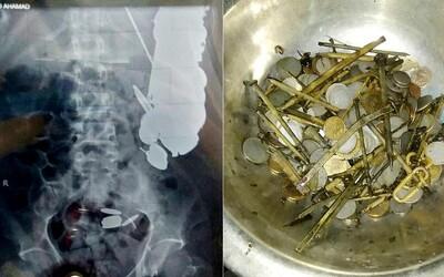 V mužovej tráviacej sústave sa našlo 7 kilogramov skla, žiletiek, kameňov, klincov a k tomu kovové putá. Maksud bol milimetre od smrti