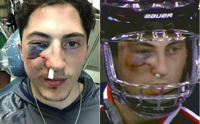 V playoff NHL sa bojuje aj cez bolesť. Obranca Zach Werenski skončil po zásahu pukom na nerozpoznanie, no aj tak pokračoval v zápase