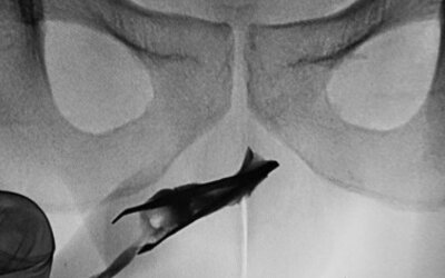 V tomto orgáne mladého muža našli lekári skoro 8-centimetrovú pinzetu. Žiadnu bolesť vraj nikdy necítil