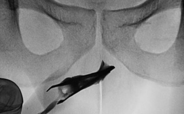 V tomto orgáne mladého muža našli lekári skoro 8-centimetrovú pinzetu. Žiadnu bolesť vraj nikdy