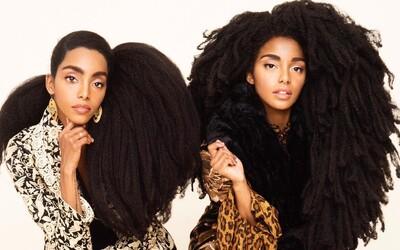 """Vďaka levej hrive sa stali múzami pre svetových módnych návrhárov. Dvojičky svoje """"chybičky"""" krásy nenávideli, no dnes ich svet obdivuje"""