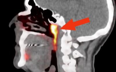 Vedci náhodne objavili v ľudskom tele nový orgán. Kde sa nachádza a načo slúži?
