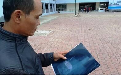 Vietnamec mal v bruchu celých 18 rokov zabudnuté nožnice. Žil bežným životom a až nedávno sa začal sťažovať na bolesti