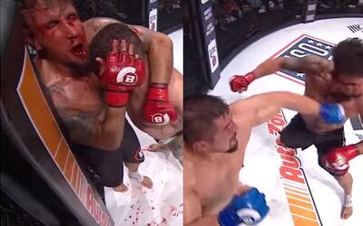 Vylámané zuby si chtěl vytáhnout z úst a bít se dál. MMA bojovník ztratil chránič a skončil celý od krve