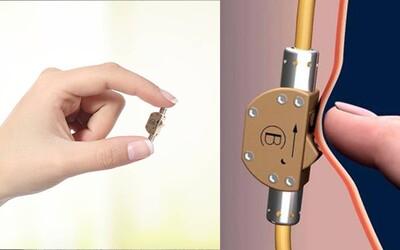 Vypneš alebo zapneš prívod spermií. Jednoduchý ventil by mohol zmeniť sexuálne dobrodružstvá nielen pre mužov, ale aj pre ženy