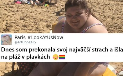 Vysmievali sa a nadávali jej, ale ona prekonala strach a šla v plavkách na pláž. Mladá Paris má zdravotné problémy, ale odmieta im podľahnúť