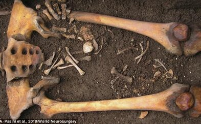 Vyvŕtali jej dieru do lebky a porodila až po smrti v rakve. Stredoveká žena zaujala archeológov kvôli unikátnej kombinácii