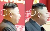 Záhadná náplast na hlavě Kim Čong-una přiměla svět spekulovat o jeho zdraví