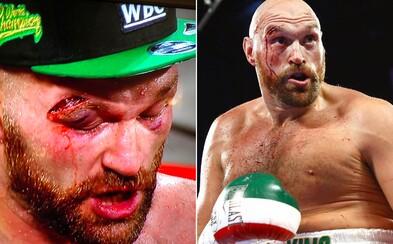 Zkrvavený Tyson Fury si odnáší další cennou výhru. Zdolal dosud neporaženého Wallina