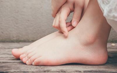 Zapálil sa ti počas ochorenia na covid palec? Britskí vedci zistili, prečo sa to môže diať