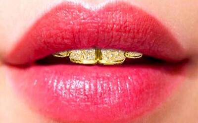 Zasmej sa so zubnou protézou zo zlata za viac ako 111-tisíc eur!