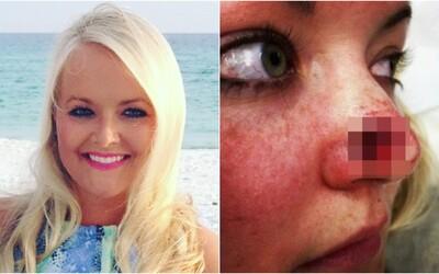 Žena chodila do solária třikrát týdně po dobu 11 let. Diagnostikovali jí rakovinu a na nose se jí vytvořila velká díra