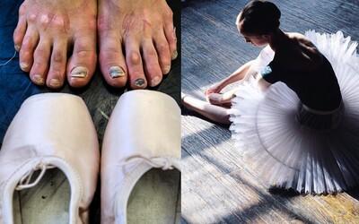 Život baletky není ani zdaleka tak krásný, jak to navenek vypadá. Dřinu a brutální režim mohou tanečnice dohnat až do extrémů