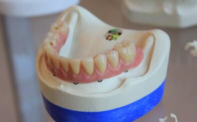 Zubař vytáhl pacientovi skoro 4 centimetry dlouhý zub. Zapsal se do Guinnessovy knihy rekordů