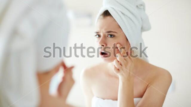 Ako sa zbaviť akné